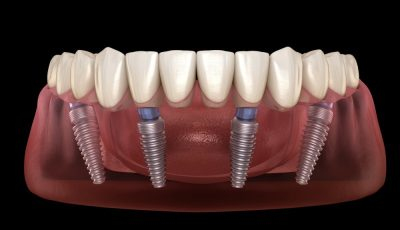 all on 4 implants finchley